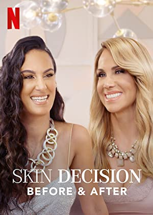 Skin Decision: Before And After: Season 1